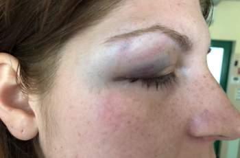 "Жертва на домашно насилие проговори пред ""Марица"" СНИМКИ 18+"