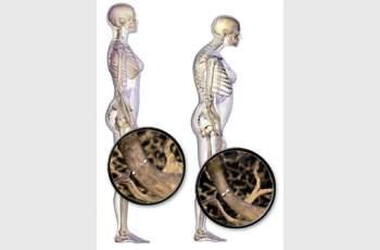 Утре можете да се тествате за остеопороза