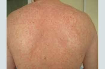 Шестима заразени с морбили в региона