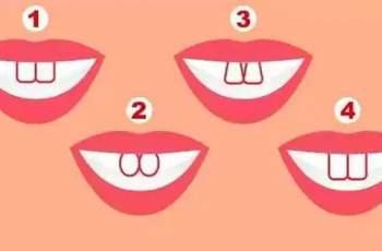 Тест: Формата на предните ви зъби разкрива нещо неочаквано за вас
