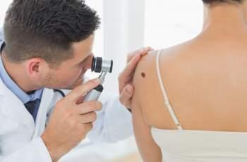 Ето на какви болести са симптом бенките