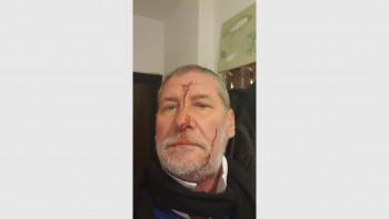 Нападнаха журналист в дома му, лицето му е в рани СНИМКИ