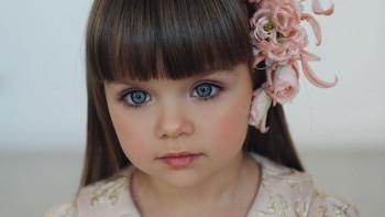 Най-красивото момиченце в света порасна, ето в какво се превърна