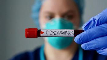 Бивш министър умря от коронавирус