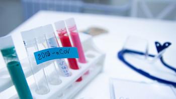 Купуваме 83 хиляди теста за коронавирус от Южна Корея