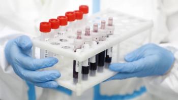 Последни данни за COVID-19: Спад на заразените, починаха 49, Пловдив втори в страната със 150 нови случая