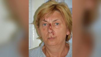 Установиха коя е жената с амнезия, намерена на остров в Хърватия
